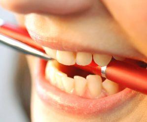 Вредные повседневные привычки которые портят зубы.