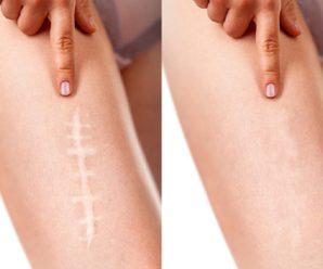 Как спрятать шрамы на теле в домашних условиях?