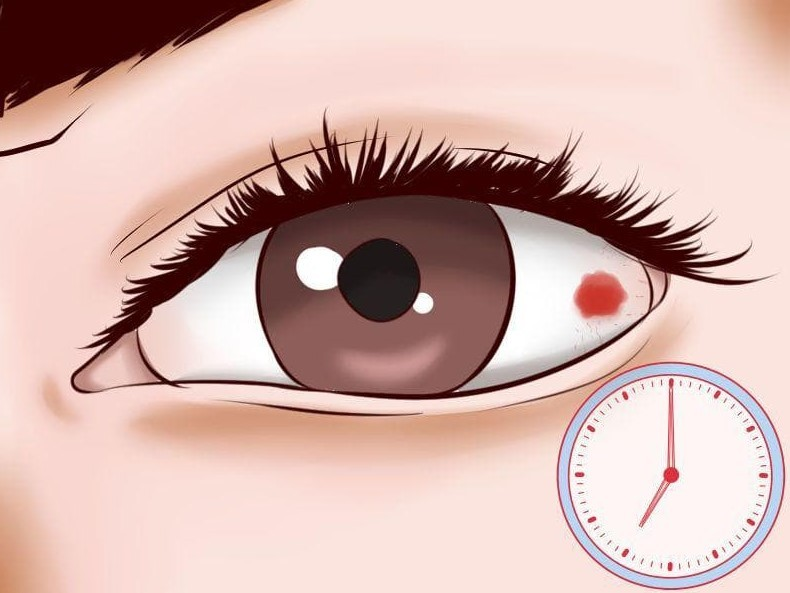 Покраснения глаз
